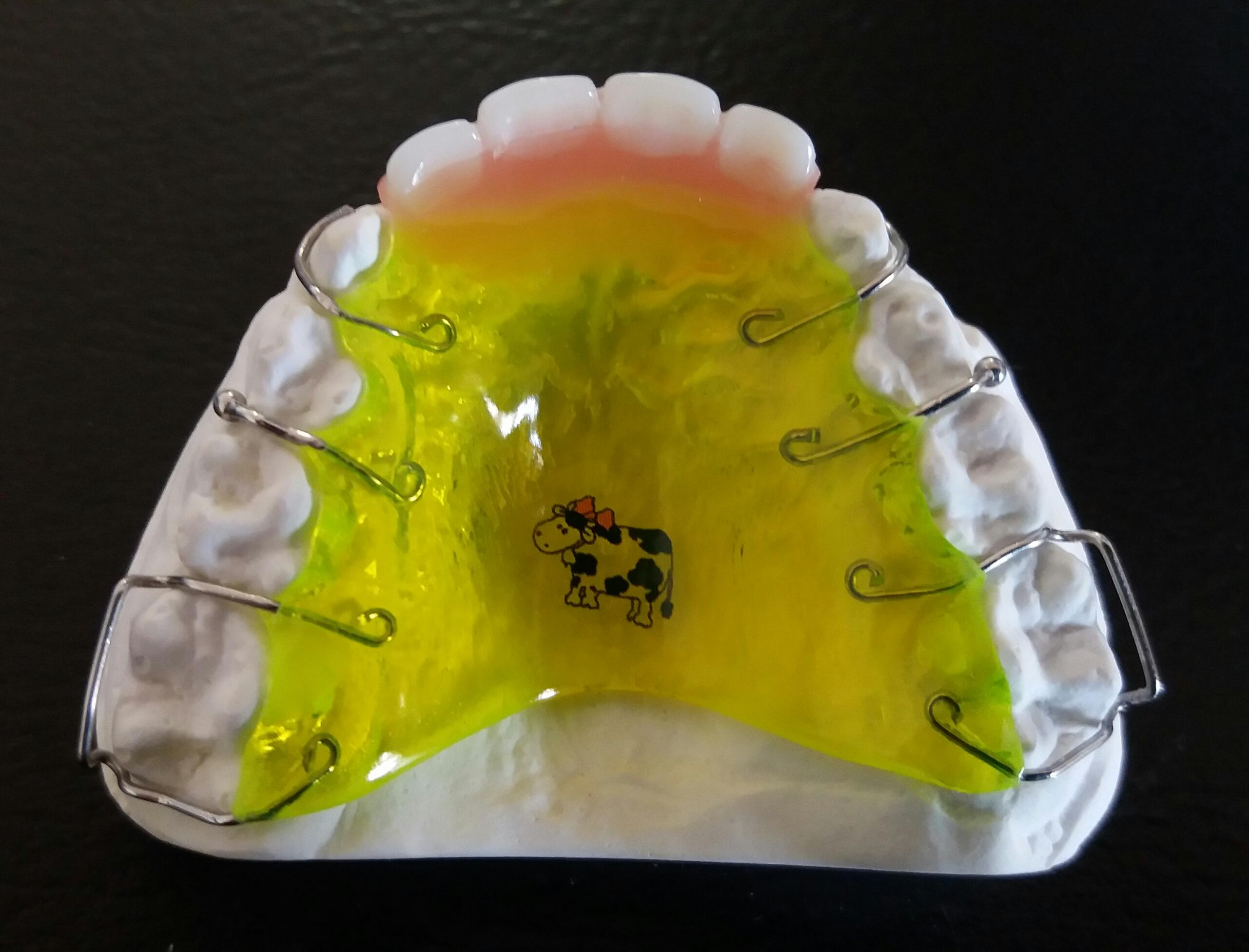 Lückenhalter mit Kunststoff-Zähnen